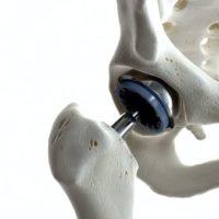 prothese totale hanche chirurgien du rachis paris docteur antoine roul